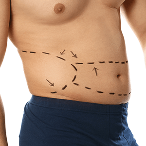 Mens Fat Removal