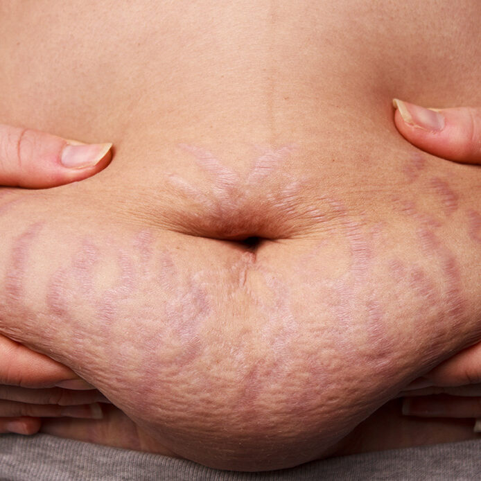 veins_capillaries_stretch marks